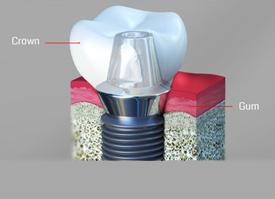 digital image of a dental implant
