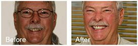 patient before and after pictures showing his improved smile