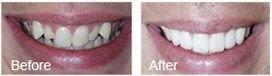 close-up before and after pictures of a smile makeover