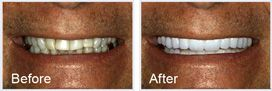 close-up of a before and after of a smile makeover