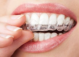 close-up of woman putting her Invisalign aligners in