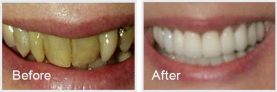 patient before and after pictures showing a smile makeover