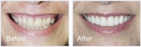 close-up of a smile makeover