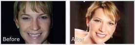 short-haired blonde woman showing her smile makeover