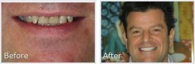 dark-haired man smiling and showing his smile makeover
