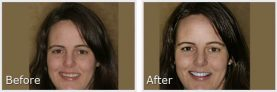 dark-haired woman showing her smile makeover