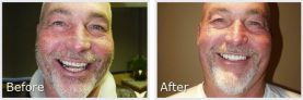 before and after pictures of a man with a grey goatee smiling