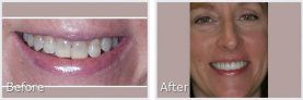 woman's before and after pictures of her smile makeover