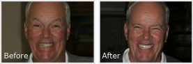 older man smiling in his before-and-after pictures