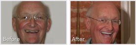 before and after pictures of older white man showing off his smile