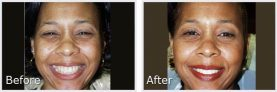 before and after pictures of black woman showing off her smile