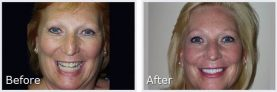 before and after pictures of long-haired blonde woman smiling