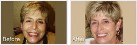 before and after pictures of a short-haired blonde woman smiling