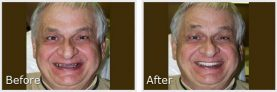 before and after pictures of older man smiling with new teeth