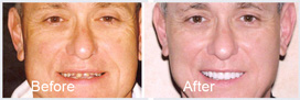 small picture of before and after of a man's smile makeover