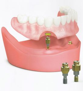 denture implants dentist York and New Freedom