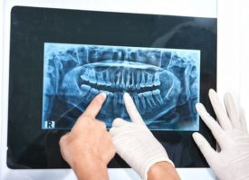 close-up of xray of patient's mouth with two gloved hands pointing and one non-gloved hand pointing