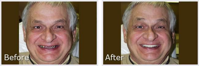 permanent dentures Shrewsbury and New Freedom